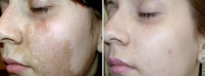 pigmentaciya